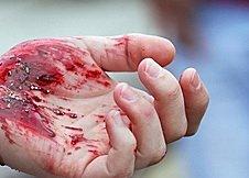 Пырнули ножом 15-летнюю девочку в Корабельном: школьница на перемене пошла купить булочку, а получила ранение | Корабелов.ИНФО
