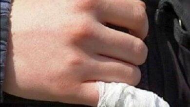Під час бійки на Миколаївщині чоловікові відкусили мізинець | Корабелов.ИНФО image 1