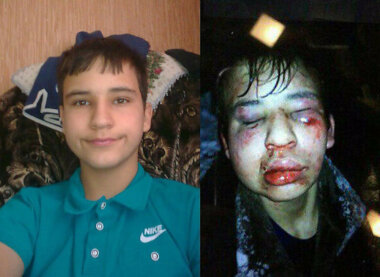 В России подростки до полусмерти избили школьника-инвалида (Видео 18+)