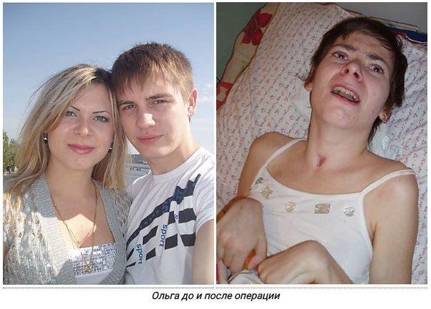 Photo of Девушка превратилась в «растение» после наркоза в больнице Корабельного района. Идет суд над врачом (Видео)