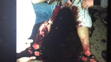 Кровавый конфликт в николаевской «наливайке» закончился поножовщиной | Корабелов.ИНФО image 1