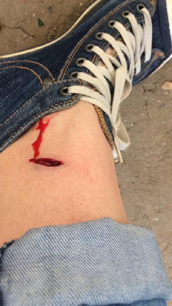 «Просто схватила меня за ногу и побежала дальше», - собака напала на жительницу Николаева в центре города