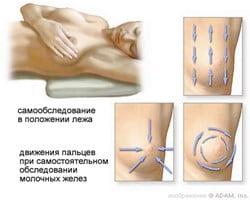 Памятка для женщин: самообследование молочных желез поможет своевременно выявить серьезное заболевание