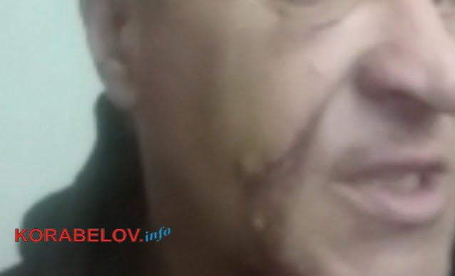 """""""Маршрутные войны"""": молодой водитель в Николаеве избил своего 51-летнего коллегу"""