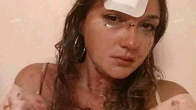 Николаевской девушке во время конфликта в ночном клубе разбили голову | Корабелов.ИНФО