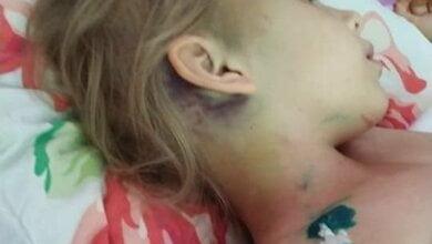 7-летней девочке, которая в Корабельном районе упала с 3-метровой высоты и сломала шею, требуется помощь   Корабелов.ИНФО image 1