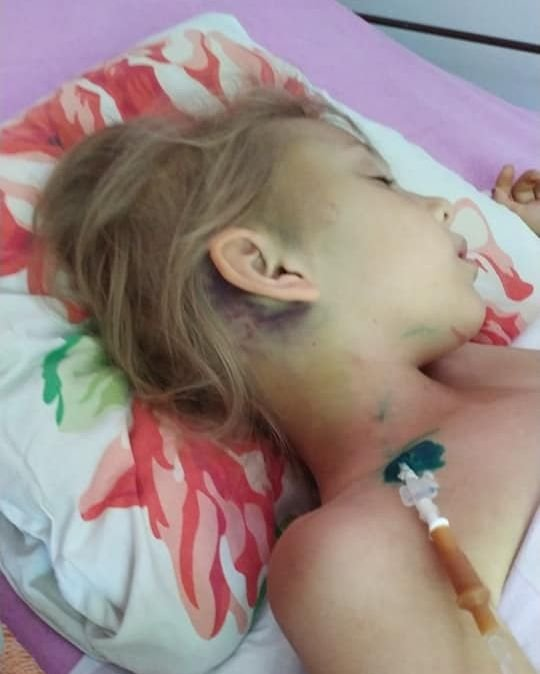 Photo of 7-летней девочке, которая в Корабельном районе упала с 3-метровой высоты и сломала шею, требуется помощь