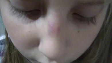 Школьники в Керчи избили новенькую: девочке сломали нос   Корабелов.ИНФО