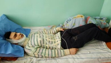 19-летний парень тяжело ранил ножом николаевца, у которого жил в квартире   Корабелов.ИНФО image 2