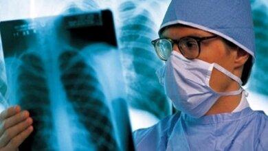 На Николаевщине - около 1200 больных туберкулезом: в 2020 году выявлено 156 новых случаев | Корабелов.ИНФО