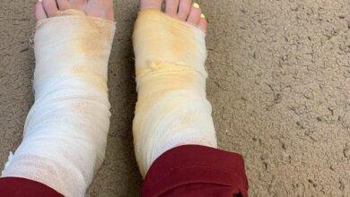Жительница Николаева получила химические ожоги после процедуры педикюра | Корабелов.ИНФО