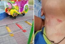 """Photo of Ребенок травмировался возле ТЦ в Корабельном - владельцы """"посмеялись в глаза"""" маме малыша"""