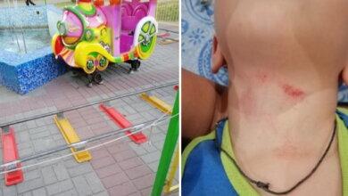 """ребенок травмировался об веревку-""""ограждение"""" аттракциона"""