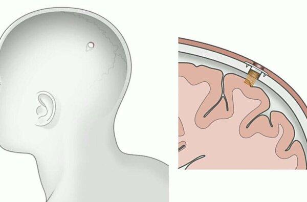 Робот просверливает в черепе отверстие: Маск презентовал чип для подключения человека к компьютеру (видео)   Корабелов.ИНФО image 1