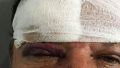 Очередное ЧП: николаевец напал на водителя коммунального автобуса | Корабелов.ИНФО