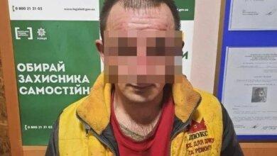 Годовалая девочка, которую отец облил кислотой на Николаевщине, находится в коме (видео) | Корабелов.ИНФО