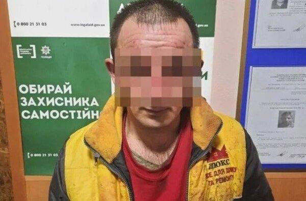 Годовалая девочка, которую отец облил кислотой на Николаевщине, находится в коме (видео)   Корабелов.ИНФО