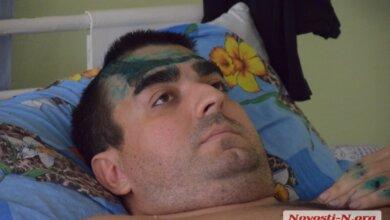 Photo of Водитель «Мицубиси», столкнувшийся с «БМВ» депутата Белавы, рассказал об обстоятельствах ДТП. ВИДЕО