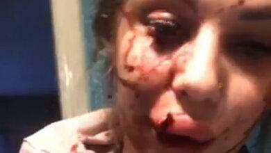 Photo of После скандала в соцсети: семейную пару в Корабельном избили на глазах у их дочери. Видео