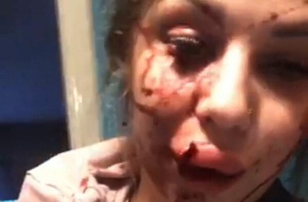 После скандала в соцсети: семейную пару в Корабельном избили на глазах у их дочери. Видео   Корабелов.ИНФО