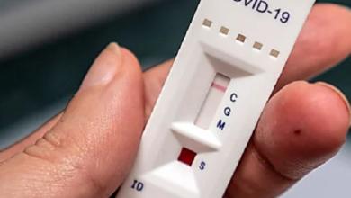 Николаевщина на этой неделе получит 23 тысячи экспресс-тестов на коронавирус | Корабелов.ИНФО