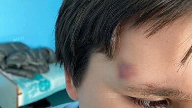 Мама заявила об избиении медработницей 8-летнего мальчика в больнице Николаева | Корабелов.ИНФО